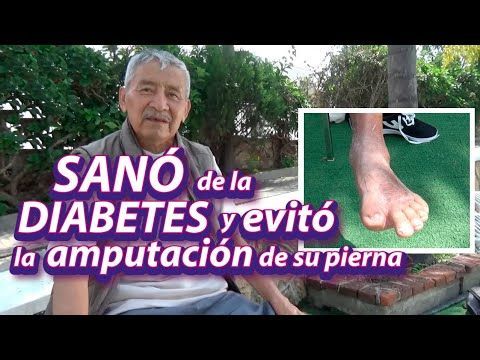 diabetes y amputación de pierna
