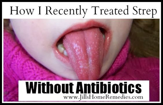 Jill's Home Remedies: How I Recently Treated Strep Without Antibiotics
