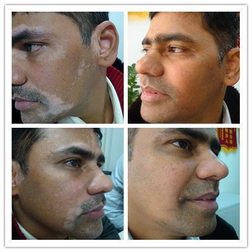 Indian Patient Recovered From Vitiligo Vitiligo Cure Vitiligo Treatment Vitiligo