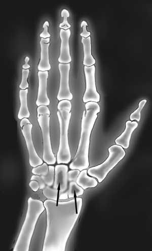abnormal hand x ray images amyloid may build up in the