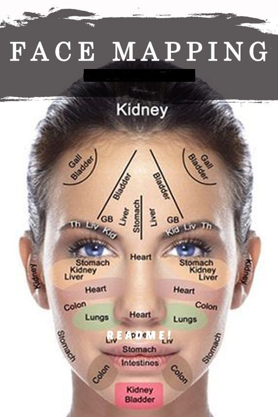 Acne Face Map What Your Acne Is Trying To Tell You About Your Health Face Mapping Acne Face Acne Facial Fillers