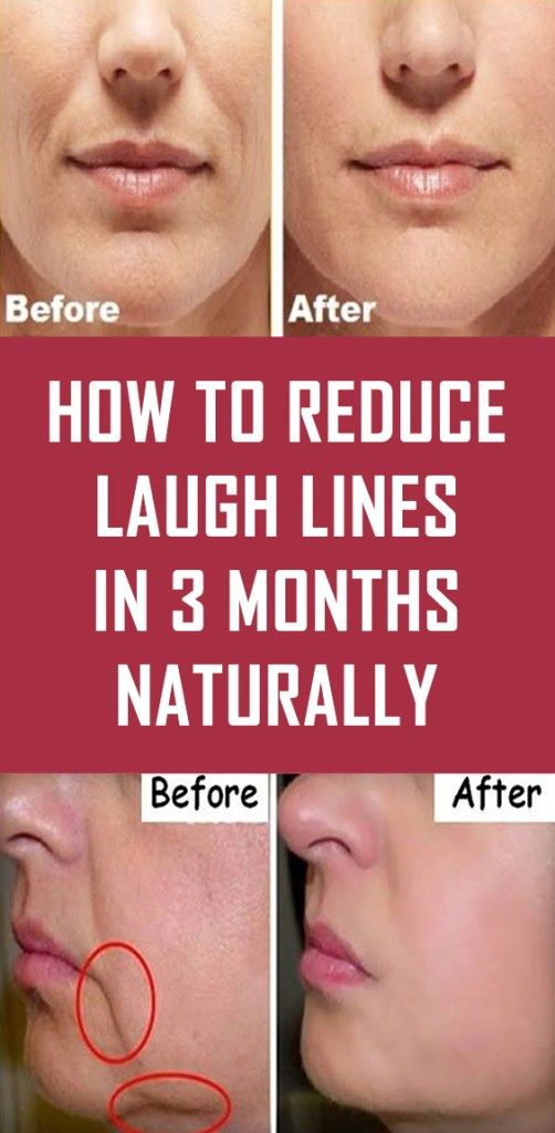 How To Reduce Laugh Lines In 3 Months Naturally Laugh Lines Natural Skin Care Routine Beauty Routine 30s