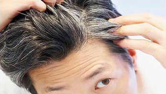 2-11-14: La ausencia de frutas y verduras frescas favorece el pelo canoso. ¡No te descuides¡ Es un consejo de YNUTRICIÓN http://consejonutricion.com  Imagen: http://laverdadnoticias.com/wp-content/uploads/2014/06/canas-jovenes-prematuras.jpg