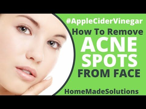 How To Remove Acne With Apple Cider Vinegar Home Made Solution Youtube Remove Acne Acne How To Remove