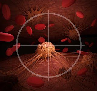 ΥΓΕΙΑΣ ΔΡΟΜΟΙ: Ποιες είναι οι πιο θανατηφόρες μορφές καρκίνου