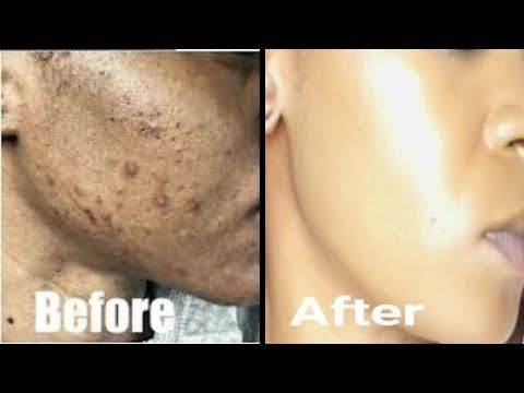 Remove Skin Tag In 1 Night Of Applying Toothpaste Youtube Skin