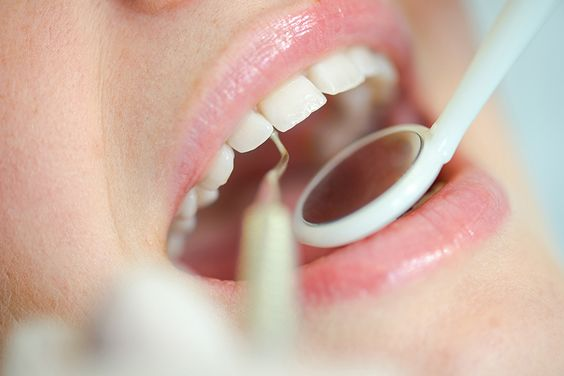 http://cheapteethimplants.co.uk  Since most businesses offer dentistry at some alarming rates, we decided to open up a clinic that is cost effective, so you don't need to hesitate to purchase any of our procedures to get your beautiful smile.