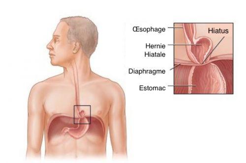 Des remèdes naturels pour traiter une hernie hiatale.   Le surpoids et la grossesse sont deux des facteurs qui peuvent favoriser l'apparition d'une hernie hiatale. Il est donc très important de faire attention à votre alimentation.