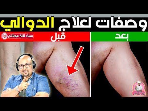 اسباب ظهور الدوالي وكيفية العلاج بوصفات طبيعية مع الدكتور عماد ميزاب Dr Imad Mizab Youtube Cloo Lga