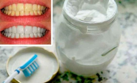 Forget about bad breath, tartar and plaque with this homemade teeth whitening toothpaste - I'm fashion