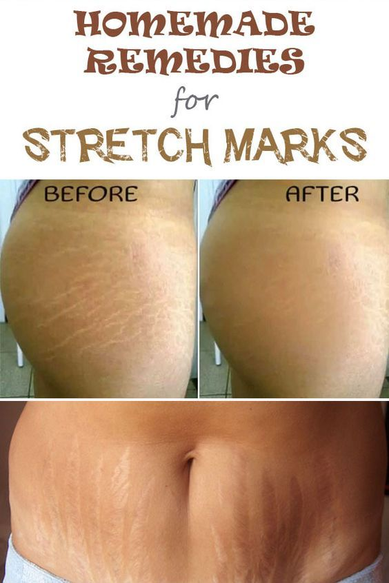 5 Effective Home Remedies For Stretch Marks With Images