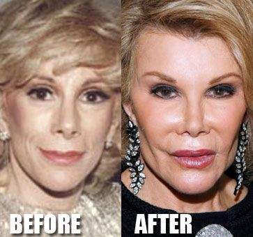 I pinned this because I think its a great representation of the enormous pressure women feel to conform to the standard of what society considers beautiful. Joan Rivers is 79 and I think it'd be just fine if she actually looked like a 79 year old.: