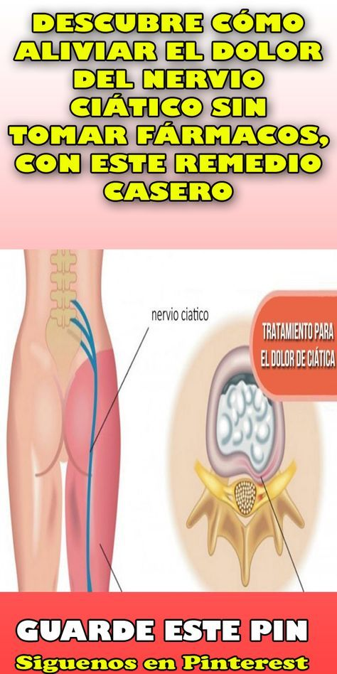 Dolor nervio ciatico tratamiento natural