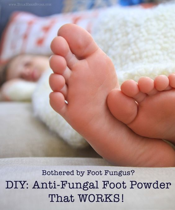 how to get rid of fungus on hands