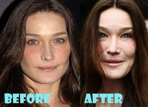 Bruni Carla Pictures Plastic Surgery Pictures Plastic Surgery Before Carla Bruni Plastic Surgery Bad Plastic Surgeries Plastic Surgery Facts