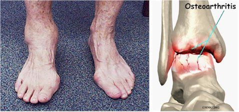what is rheumatism definition