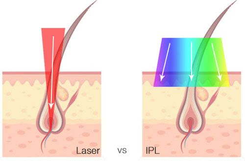 Intense Pulsed Light (IPL) - A Closer Look - Just About Skin