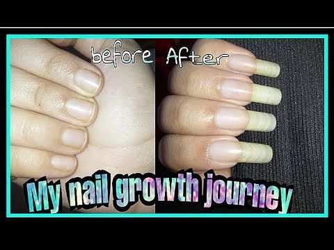 Naturally Grow Your Nails Faster Within A Week Easy Effective Home Remedy Youtube How To Grow Nails Make Nails Grow Nail Growth Tips