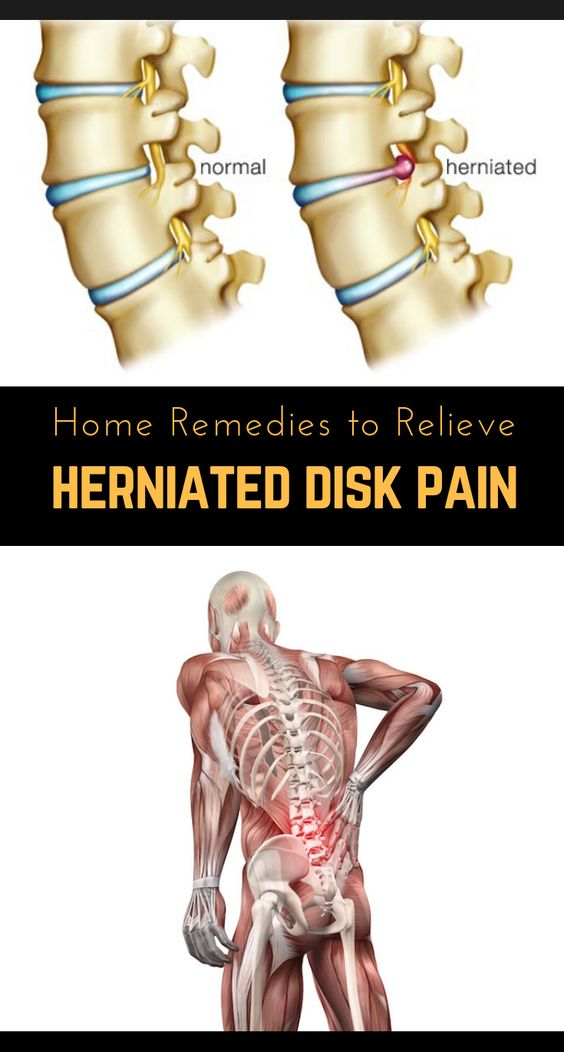 Herniated disc became the most common disease in the 21st century, causing severe back pain, and, left untreated, can lead to some serious complications. That's why you should see a doctor if you experience severe back pain, to get a correct diagnosis.