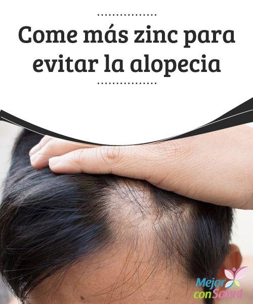 La caída de los cabellos jóvenes