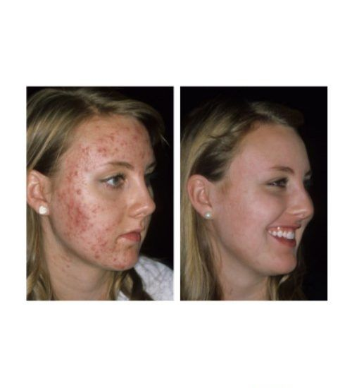 Pin On Before And After Retin A Tretinoin