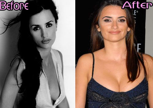 Really Penelope cruz breast implants with