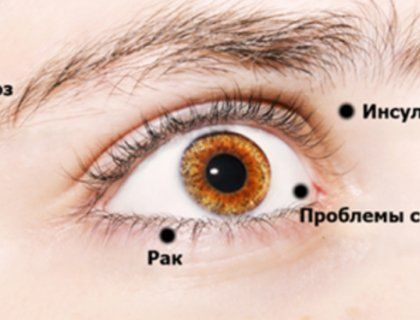 Лекарство от здоровья - hdkinogo. online