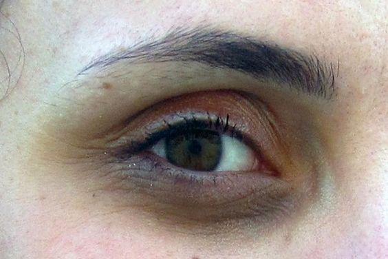 Hai costantemente le occhiaie e non sai da cosa dipendono?Ecco le cause e i rimedi naturali