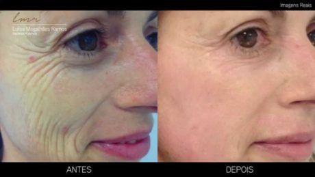 botox facial fotos antes e depois