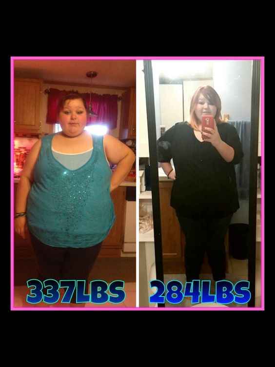Gastric sleeve after 3 months | Gastric Sleeve | Pinterest ...
