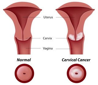 The Symptoms Of Cervical Cancer