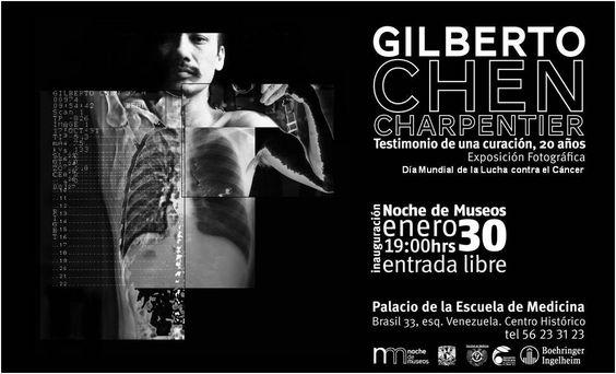 Gilberto Chen Charpentier  Testimonio de una curación, 20 años  Exposición Fotográfica  Día Mundial de la Lucha contra el Cáncer