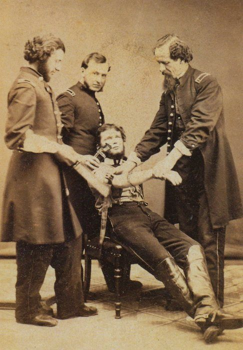ca. 1864, [U.S. Army surgeon, Dr. S. Baird Wolf, about to amputate an arm]    via Respiratory Diseases: a Photographic History 1845-1870, The Pioneer Era, Stanley B. M.D. Burns    WHILE the patient is awake it seems!