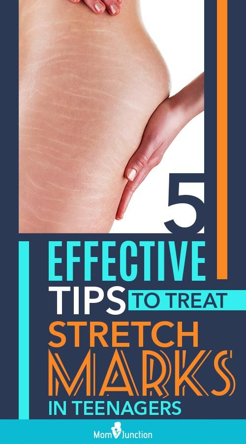 d82d84dccd1a64e22aeb897def810a21 - How To Get Rid Of Stretch Marks On Thighs Teenager
