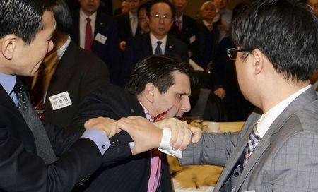 By James Pearson and Ju-min Park SEOUL (Reuters) - U.S. ambassador to South Korea Mark Lippert underwent two-and-a-half hours of surgery after he was slashed in the face by a Korean nationalist in an attack at a breakfast forum in Seoul on Thursday to discuss Korean reunification. In 2010, Kim tried to attack the Japanese ambassador to South Korea by throwing a piece of concrete and was given a suspended jail term, according to police. The attack was a protest against joint military ...