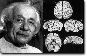 01.12.15 - 21:00 Uhr - WDR Einstein - 7 Dinge, die Sie wissen sollten Folgendes Video können Sie bereits sehen: Was geschah mit Einsteins Gehirn? Auf der Suche nach dem Geheimnis seiner Genialität http://www.lernwelt.at/service/auf-sendung/index.html