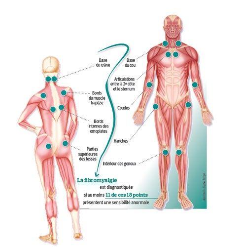 La fibromyalgie est une maladie caractérisée par l'existence de douleurs diffuses et multiples, mais aussi des troubles du sommeil, de la fatigue, des troubles de l'humeur, d'un sommeil non réparateur, de troubles de la mémoire, du syndrôme du colon irritable.