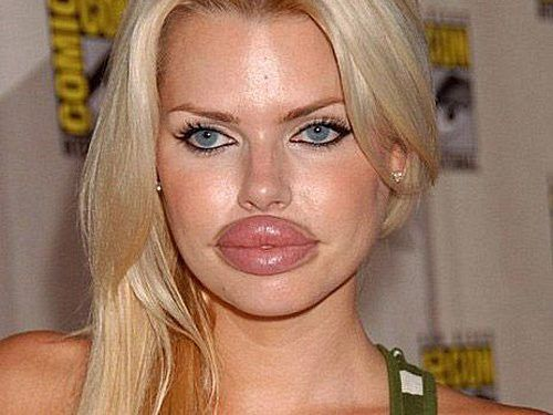 Plastic Surgery.. You're doing it wrong..