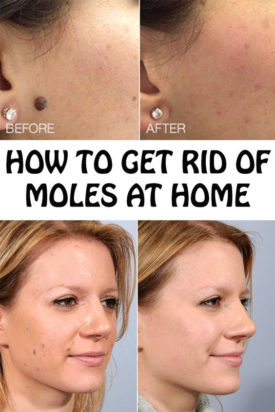moles skin how to get rid of them