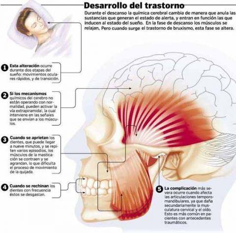 Bruxismo 5 Ejercicios Para Mejorar Tu Tensión En La Mandíbula Bruxismo Dental Ejercicios Cervicales Odontología