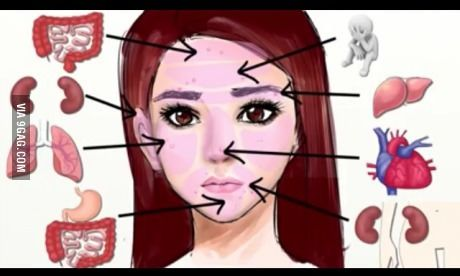 Map to help you find the sole problem of your acne