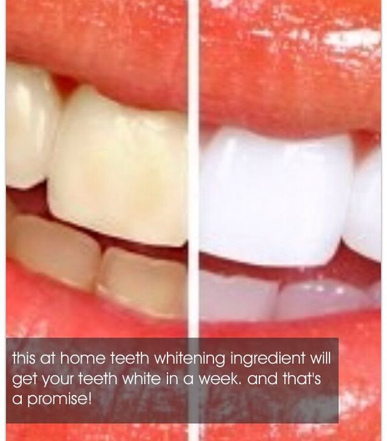 How To Whiten Teeth Instantly Teeth Whitening Diy Instant