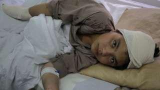 """Image copyright                  Getty Images Image caption                                      Un niño afgano en el hospital tras un ataque del Talibán en Kabul, en abril de 2016.                                """"Tengo 10 años. Cuando jugaba en las calles de mi pueblo, algo explotó"""". """"Sentí un fuerte ruido y una onda viniendo hacia mí, como el viento"""". Este es el testimonio es de un niño que sobrevivió a una explo"""