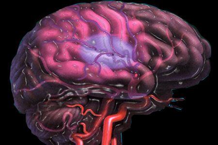 Scientists report a potential new treatment to prevent strokes.