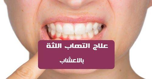 علاج التهاب اللثة بالأعشاب التهاب اللثة مشكلة يعاني منها الكثير من الناس حتى عند غسل اسنانك بالفرشاة او تناول الطعام ترى ان اللثة تنزف بكثرة فهذا دليل على اصاب