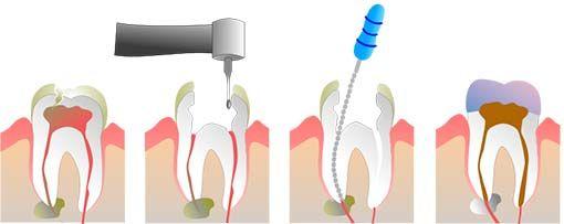 Rodbehandling af tand