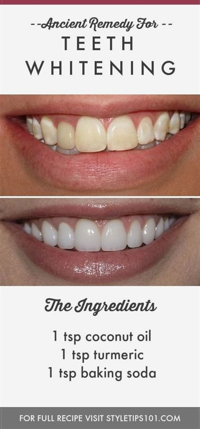 Smokers Teeth Whitening