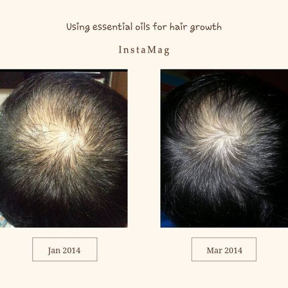 essential oil blend for hair growth mix 4 drops of