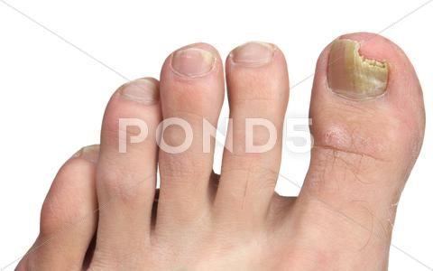 Toenail Fungus At Peak Infection Stock Photos Ad Peak Fungus Toenail Photos Toenail Fungus French Tip Acrylic Nails Toe Nails