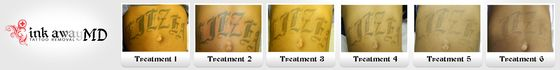 Abdomen Tattoo - Six Treatments' Progress